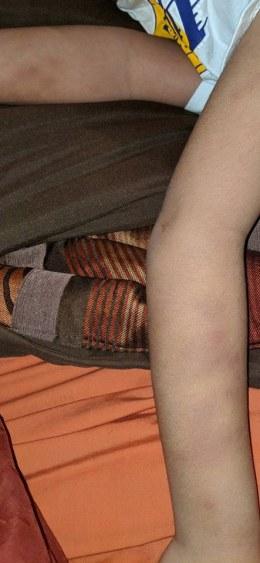 Bruises3