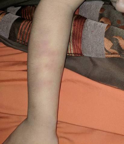 Bruises4